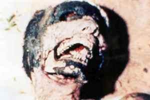 BRAZILIAN FACIAL MUTILATION