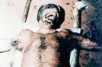 BRAZILIAN HUMAN MUTILATION